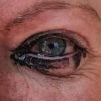 It's in the eye!